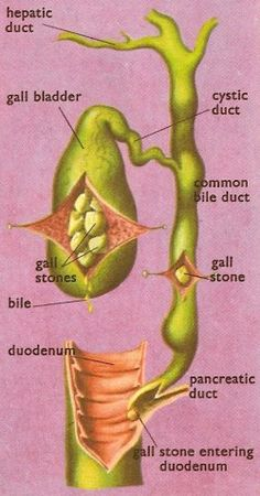 biliary system and gallstones