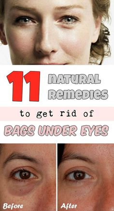 11 natural remedies to get rid of bags under eyesBags under eyes are one of the beauty enemies and who have them knows how hard can be masked by makeup. Their causes are related to kidney function, some respiratory problems, lifestyle (caffeine, stress), but also genetics. Sometimes, even if you sleep more, puffy eyes and dark circles do not disappear. Here are some natural remedies that diminish puffy eyes:Apply cold compresses on the eyes Put a wet towel in the refrigerator overnight or…