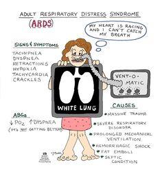Acute Respiratory Distress Syndrome (a.k.a.: Noncardiogenic Pulmonary Edema, Adult Respiratory Distress Syndrome, Shock Lung)