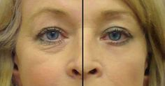Here are 2 solutions to under eye wrinkle problems and eye bags. Under eye bags and wrinkles can age a person quite a bit. Best Oil For Skin, Oils For Skin, Under Eye Wrinkles, Prevent Wrinkles, Face Wrinkles, Beauty Secrets, Beauty Hacks, Dark Circles Under Eyes, Eye Circles