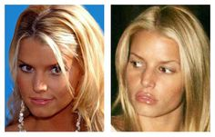 Jessica Simpson Plastic Surgery Before After Always interesting what you can find when you type in plastic surgery and other related terms