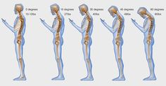 How Your Texting Or Facebooking Is Killing Your Neck