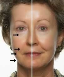 An incredible before/after pic of Cellessence use!  With Cellessence, skin appears more uniform, skin is firmer and more elastic, skin is softer, skin profile is improved, and it reduces wrinkles and lines!  www.BuyCellessence.com  #facialcream #cellessence #antiaging #wrinkefree #softskin #youngskin