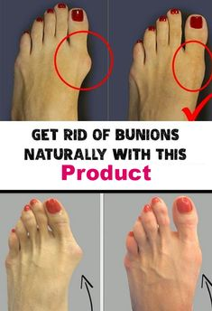 Get Rid Of Bunions Naturally With This Simple But Powerful Remedy - Pure Natural Skin Health Tips For Women, Health Advice, Health And Beauty, Health And Wellness, Health Care, Health Fitness, Beauty Skin, Mental Health, Herbal Remedies