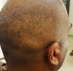 #fue #hairtransplant is scarless ???? Is that so? This picture clearly shows the scars of a previous procedure done by leading plastic surgeon in India using the technique of #FUE . We are doing a second session today . As a patient please understand that all techniques produce scars. #fut has a line while #fue has dots . No technique is scarless.  The decision to choose a particular technique should be that of the surgeon who is performing the procedure based on his experience and what he…