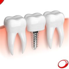 What's most important: whether your teeth and smile look good, or work properly? No need to answer; with Dental Implants you can have both!  Don't wait any longer to change your life!