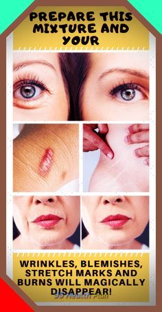 Tips For Oily Skin, Cream For Oily Skin, Moisturizer For Oily Skin, Acne Skin, Acne Prone Skin, Acne Scars, Vanilla Oil, Blemish Remover, Body Hacks