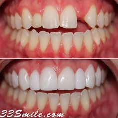 If youre missing a tooth no problem! We can do a bridge or an implant. In this case our patient did a veneer bridge. We did not have to prep the teeth on either side next to the missing tooth and were able to fill in the gap. #drjamsmiles #33Smile . . All photos and video of patients are of our actual patients. All media is the of Cosmetic Dental Associates. Any use of media contained herein is prohibited without written consent. . . #satx #satxdentist #dentistry #goals #smile #teeth #instagoa Missing Teeth, Dental Cosmetics, Smile Teeth, Dental Procedures, Cosmetic Dentistry, Beautiful Smile, Tooth, Gap, Fill