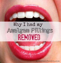 Why I had My Amalgam Fillings Removed