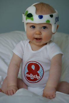 Plagiocephaly Decorate Baby Helmet Or Band Plagiocephaly - Baby helmet decals
