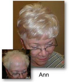 Grey Human Hair Clip in GreyHair HumanHair Hair+ Short Human Hair Wigs, Human Hair Clip Ins, Grey Hair Topper, Grey Hair Pieces, Grey Hair Extensions, Brown Blonde Hair, Gray Hair, Bald Hair, Hair Toppers