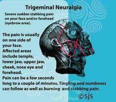 Trigeminal neuralgia Migraine Triggers, Chronic Migraines, Chronic Illness, Chronic Pain, Migraine Headache, Fibromyalgia Pain, Atypical Trigeminal Neuralgia, Occipital Neuralgia, Barometric Pressure Headache