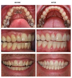 Before and after inman aligners from our Raleigh Dentist  Learn more at  www.glenwoodsmiles.com/services/inman-aligner