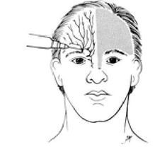 facial dermatomes herpes zoster shingles is usually eyebrow pain diagram