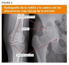 Artrosis (AMF 2014) A propósito de un caso