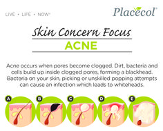 Acne occurs when pores become clogged. Dirt, bacteria and cells build up inside clogged pores, forming and blackhead.