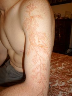 """""""People who are struck by lightning are sometimes left with tattoo-like markings called Lichtenberg figures or lightning flowers. This guy was out tending to his garden when he was struck and left tattooed, Potter-like."""""""