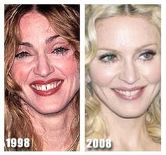 before and after plastic surgery celebrities - Google Search
