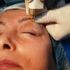 Tribe is Trend: Jacken mit bunten Ethno-Mustern The Plasma Pen is a new method that is used to tighten skin areas.de we explain what the pen really can. New EyeBrows Routine Facial Procedure, Natural Gel Nails, Mascara Tips, Perfect Eyebrows, Ethnic Patterns, Natural Face, Facial Care, Skin Tightening, Eyebrow Makeup