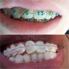 In life they say you always got options.Well Same in dentistry! . Ceramic braces (clear braces) are really awesome for adults who are up and about alot and don't want that obvious look. They both work well it's just that now you know... U got OPTIONS! . Which one would you choose.. #smile #cosmeticdentistry #cosmetic #beauty #dentalassistant #dentistry #braces #orthodontics #ortho #blackexcellence #odontologia #teeth #harare #zimbabwe #dentist #move #working #cool #discrete #straightteeth…