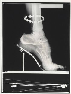 helmut newton, x-ray, french vogue, paris, 1994 So glad I don't wear heels. Look at those poor bones!