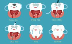 Dental Myth: Root canal treatment causes illness. The fact is root canal helps you save your tooth and prevent any further damage. There's no scientific proof to show that root canal treatment causes any kind of illness in your body.
