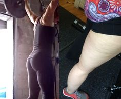 Cellulite: normal and natural (good article)