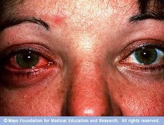 What Natural Home Remedy Healed My Pink Eye? Find out here: http://drswilandkirstenliwanag.com/2012/12/what-natural-home-remedy-healed-my-pink-eye/
