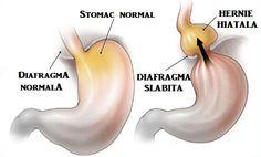 HERNIA hiatală – simptome, cauze, tratament, regim Pear, Garlic, Banana, Vegetables, Fruit, Food, Essen, Bananas, Vegetable Recipes
