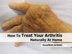 How To Treat Your Arthritis Naturally At Home