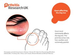 Gout infecting a big toe Yoga For Arthritis, Big Toe, Gout, Health, Projects, Salud, Blue Prints, Health Care, Healthy