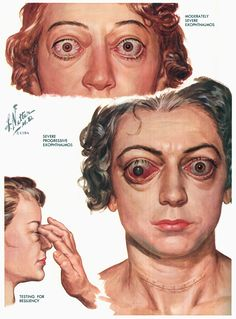 Frank H Netter  25 April 1906  17 September 1991 was an American surgeon and celebrated medical illustrator The first edition of his Atlas of Human Anatom