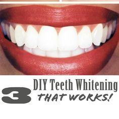 3 DIY Teeth Whitening Tricks That Work!