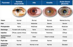 iritis vs conjunctivitis vs keratitis evaluation of painful eye Opthalmic Technician, Optometry School, Medical School, Pathophysiology Nursing, Eye Anatomy, Heart Anatomy, Eye Facts, Diabetes, Healthy Eyes
