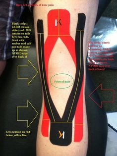 Remedies For Knee Pain KT Tape for Hamstring, awesome diagram with explanations Kt Tape Knee, Knee Taping, Knee Meniscus, K Tape, Knee Exercises, Kinesiology Taping, Knee Arthritis, Athletic Training, Postural