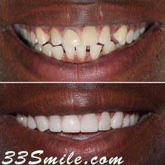 We love this result! This patients treatment was a combination of Invisalign and veneers. Sometimes a combination of the two will give the best result.  #drjamsmiles #33Smile .  . All photos and video of patients are of our actual patients.  All media is the  of Cosmetic Dental Associates.  Any use of media contained herein is prohibited without written consent. . . #satx #satxdentist #dentistry #goals #smile #teeth #instagoals #transformationtuesday #beforeandafter #whiteteeth #perfect… Insta Goals, Dental Cosmetics, Smile Teeth, Dental Procedures, Cosmetic Dentistry, Transformation Tuesday, Beautiful Smile, Two By Two, Photos