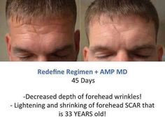 Redefine on old scar.....https://www.tammym.myrandf.com