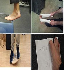 Sprained ankle - Wikipedia, the free encyclopedia