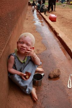 Albino child in Tanzania, which has the largest population of albinos in the world. The discrimination and violence is high. Many of the albinos are abducted and butchered for parts used in ceremonies.