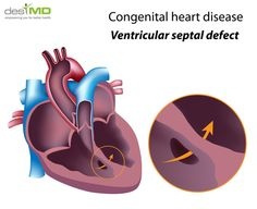 Congenital Heart Defect - Cardiac Disorders - Health Education - DesiMD Healthcare