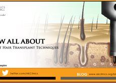 Hair transplant is hardly considered a major surgery. We use advance hair restoration technology at our Delhi, Ludhiana and Banaglore (India) clinics