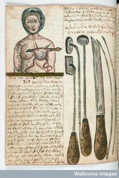Illustration d'une femme subissant une mastectomie, avec une vue rapprochée des instruments chirurgicaux, vers 1675
