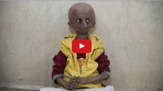Indian Boy with Progeria Syndrome becomes an Inspiration for all
