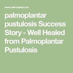 palmoplantar pustulosis Success Story - Well Healed from Palmoplantar Pustulosis