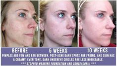 """Elizabeth G. says, """"My 60(ish) day results are in! I am SO in love with UNBLEMISH regimen. I haven't had creamy skin since I was in 4th grade ... until this month. My pimples are few and far between, and my dark circles are much lighter thanks to R + F's multi-function eye cream.""""   Stop battling your skin and message me for details or go to my web page now!  You won't regret it.  https://connietompkins.myrandf.com/Shop/Unblemish"""