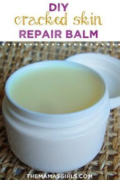 Cracked Skin Repair Balm When the weather gets cold and dry, my hands get so chapped that they crack! This stuff really helps!When the weather gets cold and dry, my hands get so chapped that they crack! This stuff really helps! Diy Beauté, Diy Lotion, Cracked Skin, Dry Cracked Hands, Hygiene, Homemade Beauty Products, Belleza Natural, Beauty Recipe, Diy Skin Care