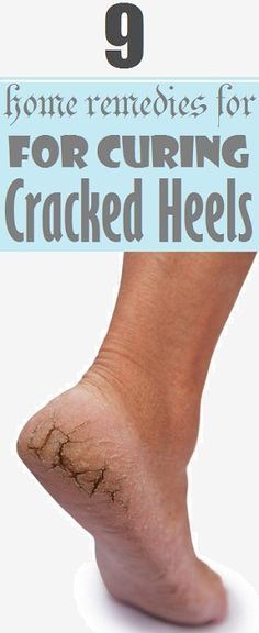 9 Home Remedies for Cracked Heels..