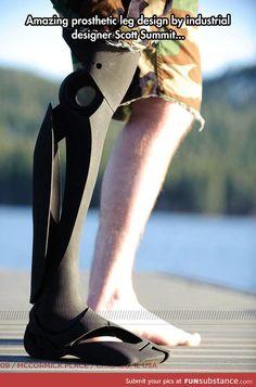 Beautiful prosthetic leg