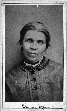 Chronic Mania - West Riding Pauper Lunatic Asylum 1869