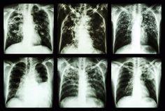 Allerede nå dør cirka to millioner mennesker av tuberkulose hvert år. Lungene på bildet er syke med tuberkulose. Hvis antibiotika ikke lenger kan ta knekken på bakterier, kan noe så enkelt som en urinveisinfeksjon bli dødelig. Foto: Colourbox.com